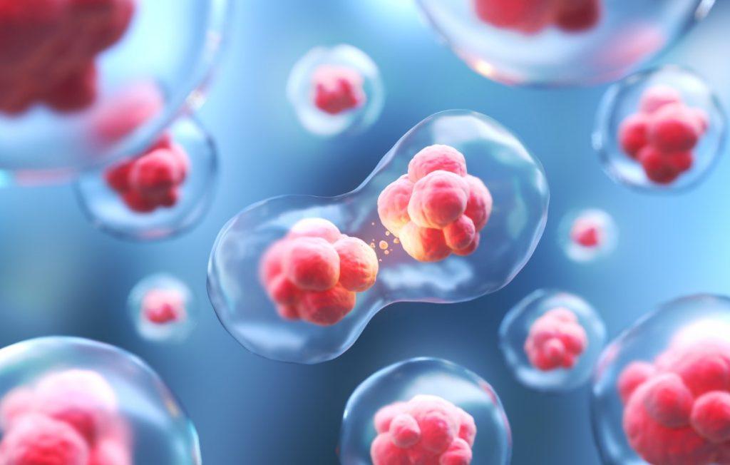 celule stem ploiesti