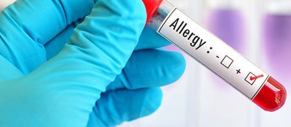 alergologie ploiesti